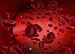 Doctors say $1'superblood' may work against deadly malignancies